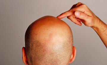 Finger zeigt auf Kopf