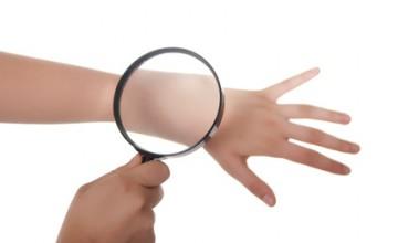 Eine Lupe untersucht die Haut vorsorglich nach Neurodermitis