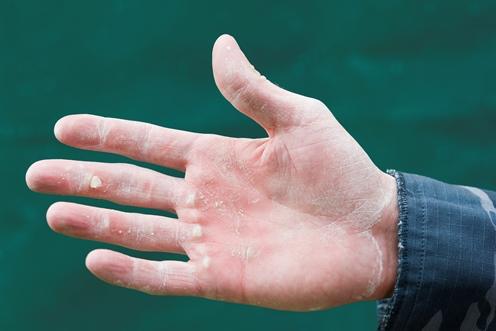Schwielen: Riskante Handarbeit beim Krafttraining